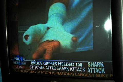 shark attack bruce grimes 2 American Surfer Injured in Shark Attack Plans to Surf Again